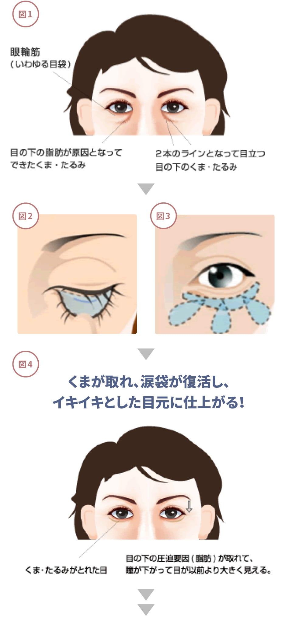腫れ 片目 袋 痛い 涙